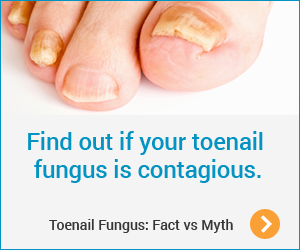 Toenail Fungus - Fact vs Myth