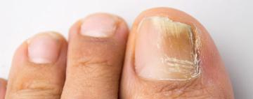 Toenail Fungus Treatment Options Table